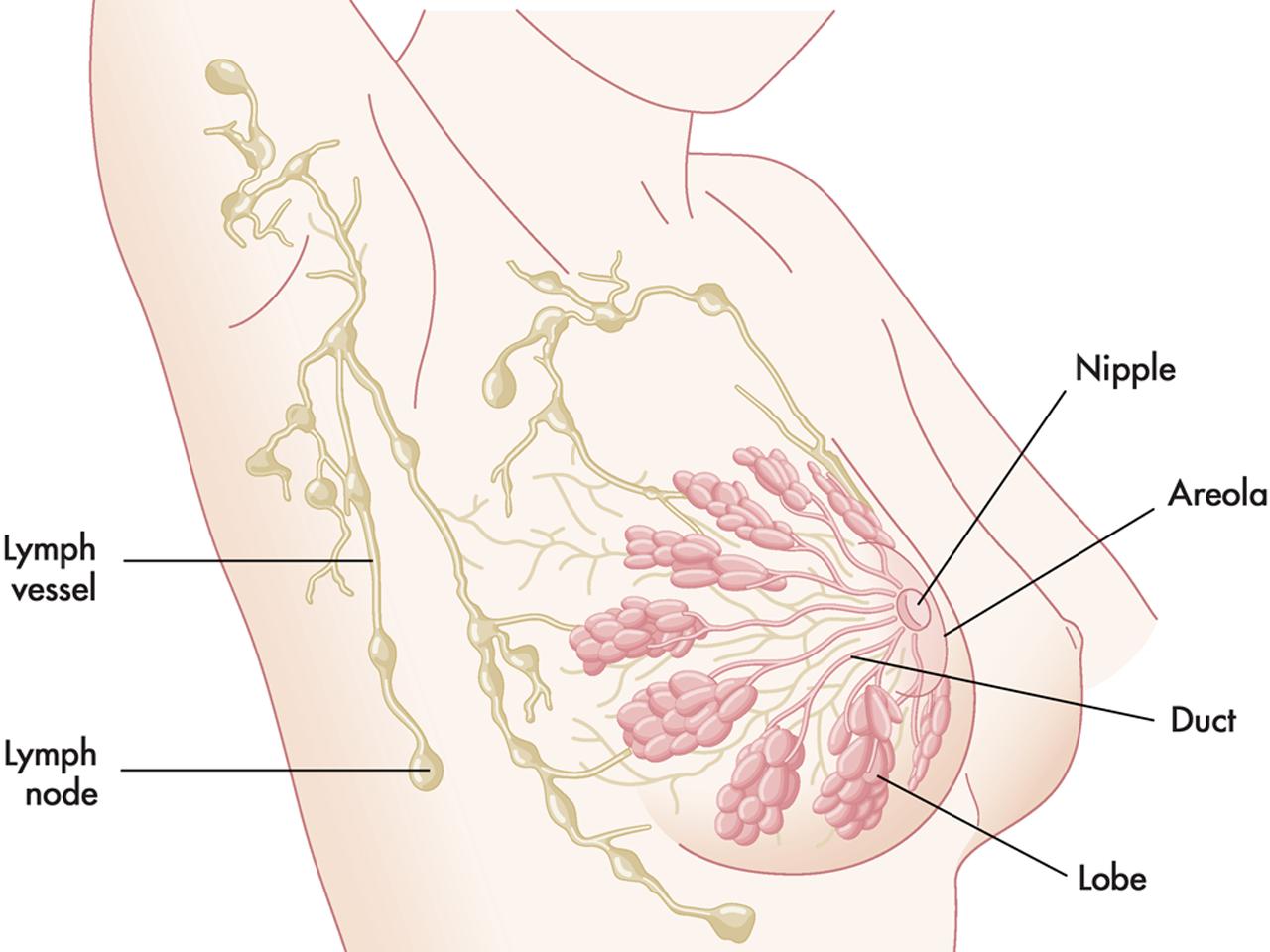 Лимфоузлы при мастопатии увеличиваются и болят: что делать