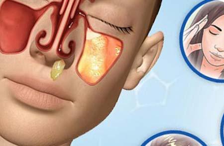 Причины и лечение гнойного насморка