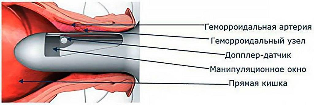 Дезартеризация геморроидальных узлов: описание процедуры и отзывы
