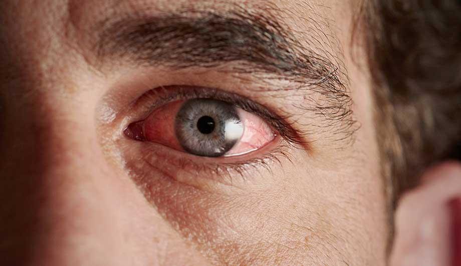 чем снять покраснение глаз в домашних условиях