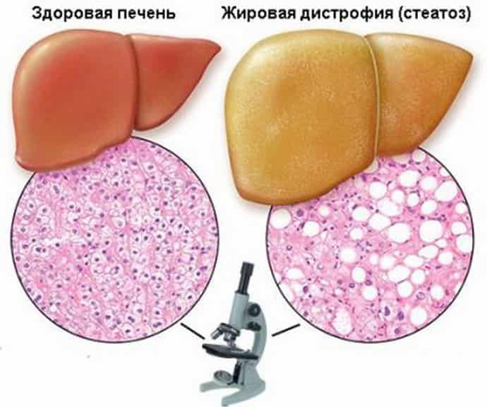 лечение жировой дистрофии печени