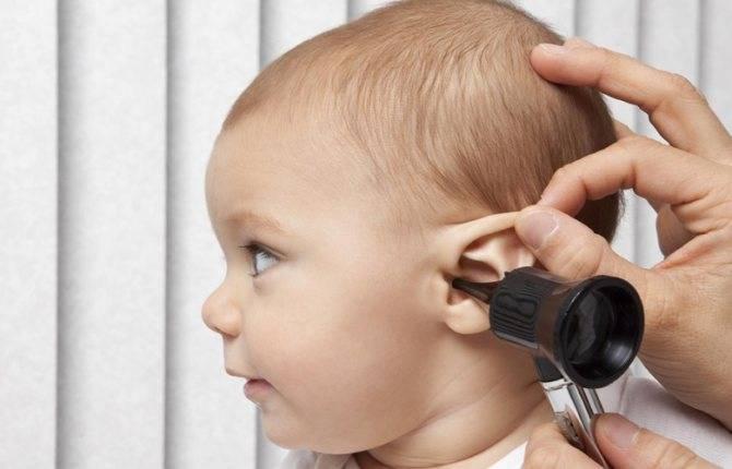 как лечить отит у ребенка