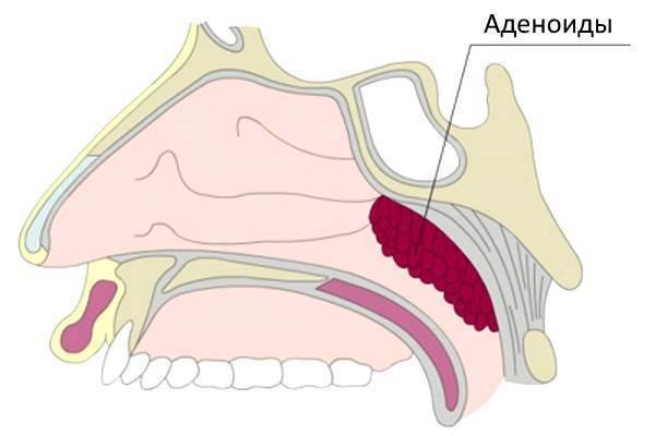 Аденоиды у взрослых: симптомы (фото), удаление и консервативное лечение