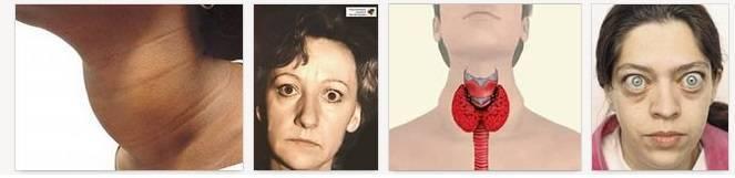 диета после удаления щитовидной железы у мужчин