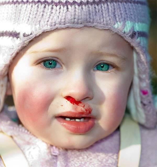 Ребенок ударился носом что делать