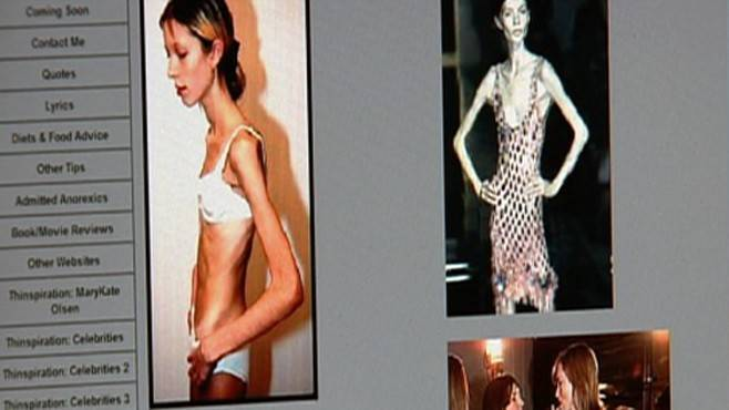 Как понять, что у человека анорексия - wikihow