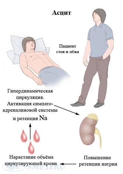 Асцит при циррозе печени: причины, симптомы, лечение
