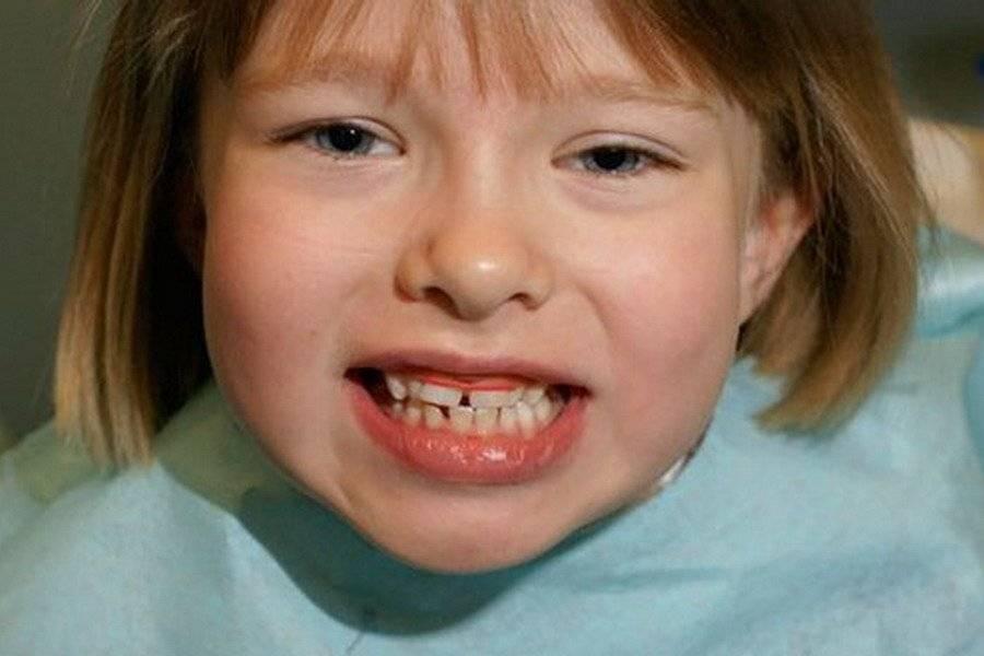 нижние зубы у ребенка растут криво