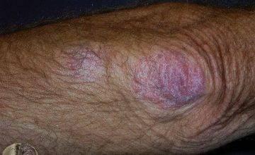 псориаз обыкновенный лечение