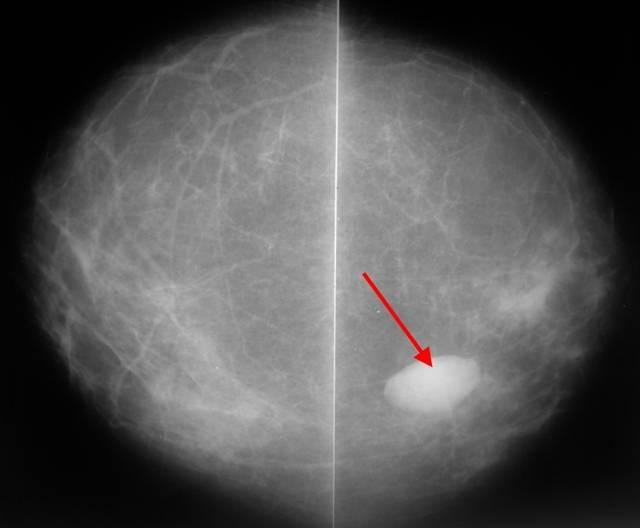Фиброзно жировая инволюция молочных желез
