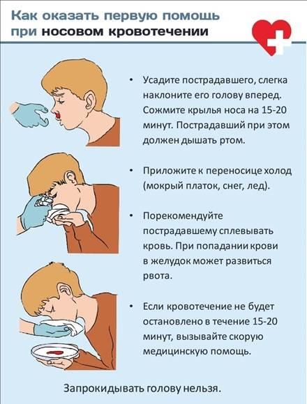 От чего может идти кровь из носа у беременных причины