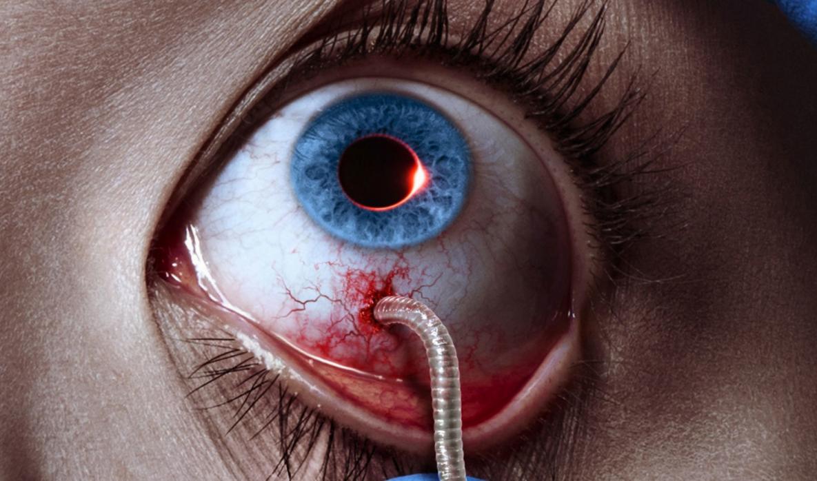 Паразиты в глазах человека – миф или реальность?
