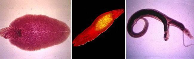 Клонорхоз: симптомы, лечение