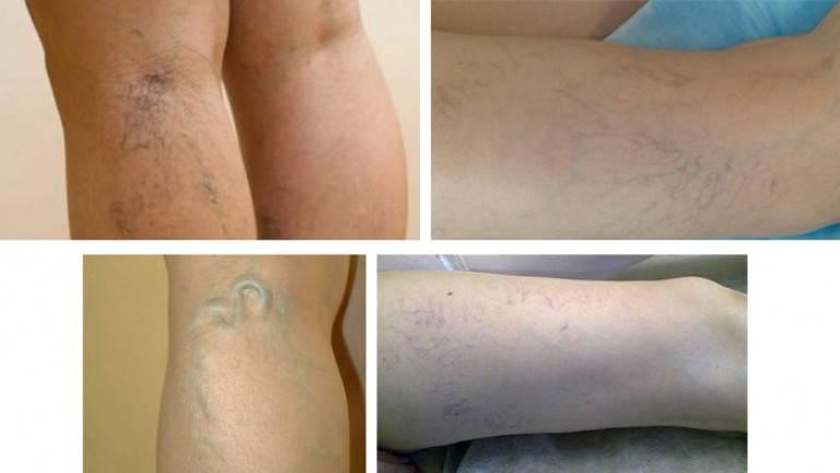 Помощь при варикозном (венозном) дерматите нижних конечностей: причины заболевания и методы лечения