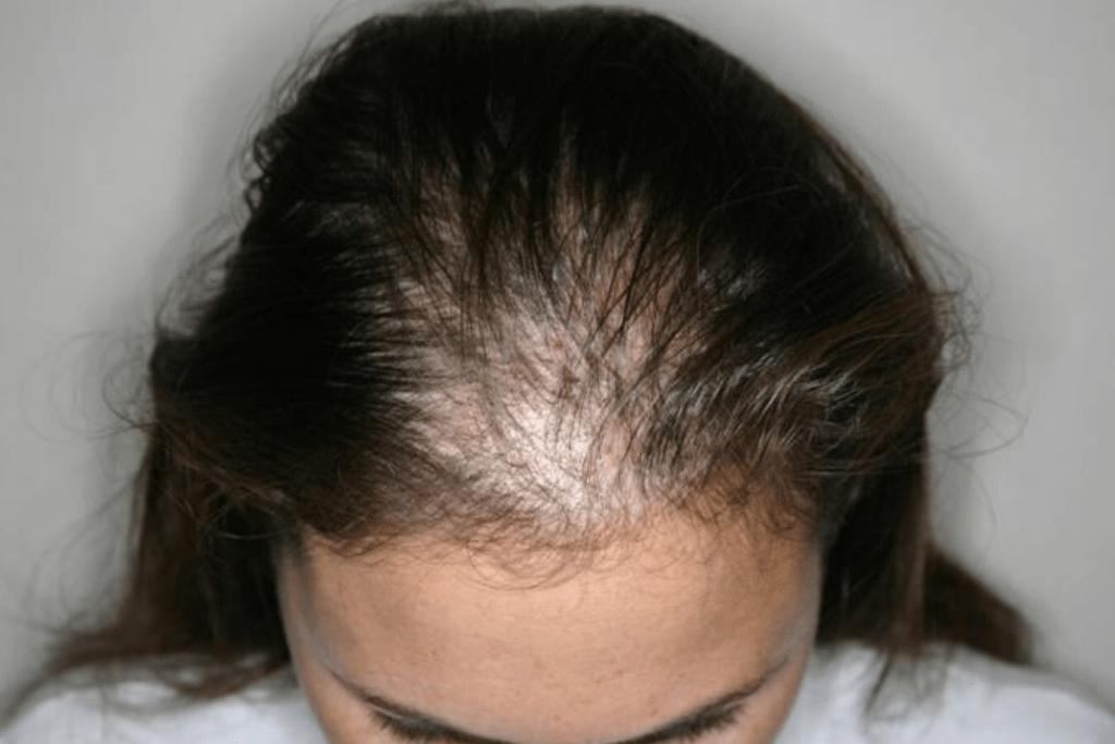Выпадение волос у женщин лечение щитовидной железы
