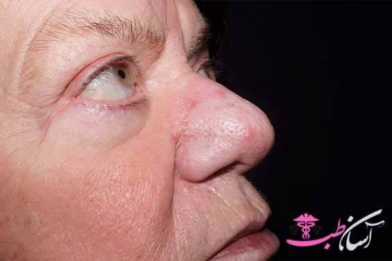 Рак полости носа: чем опасны затяжной насморк иболь вздоровых зубах