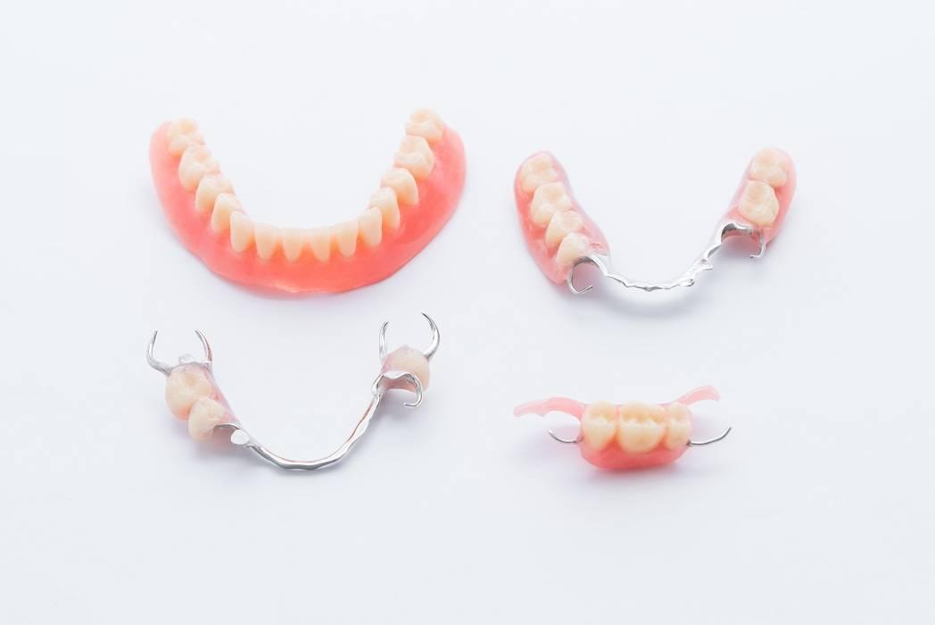 Съемные и несъемные зубные протезы при частичном отсутствии зубов: виды и фото