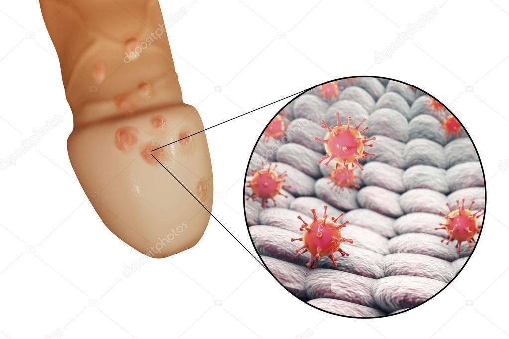 рецидив генитального герпеса во время беременности