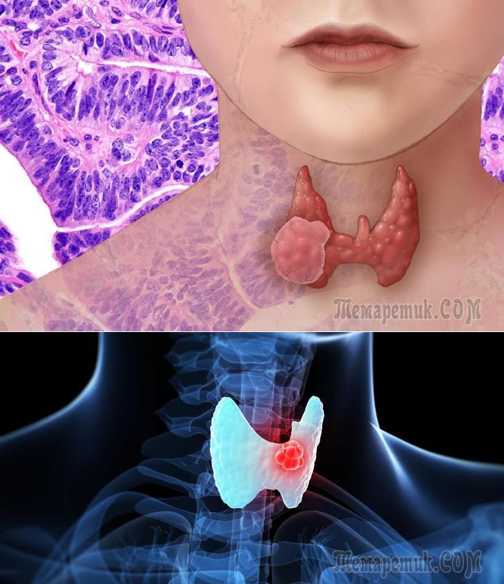 припухла щитовидная железа
