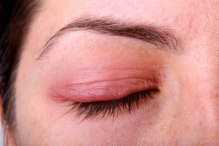 Что делать, если чешутся уголки глаз?