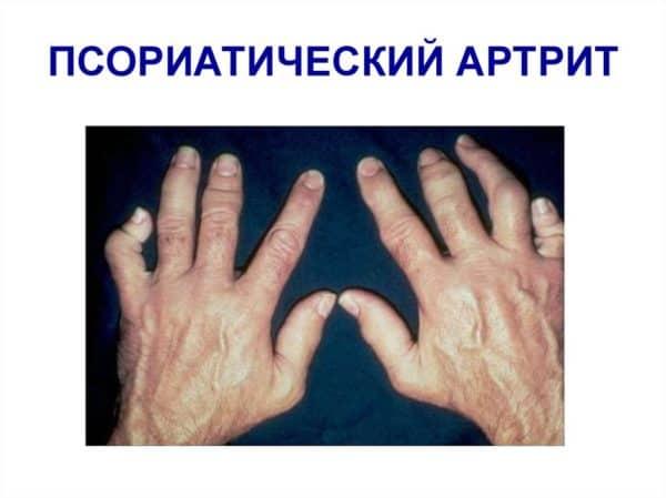 Псориатическая артропатия: лечение артропатического псориаза суставов
