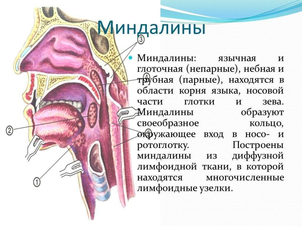 Воспаление миндалин: симптомы, лечение