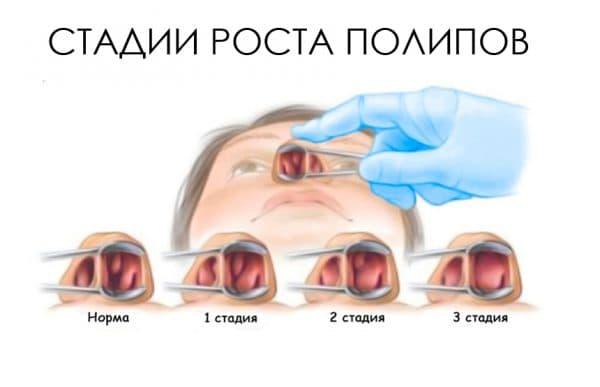 5 эффективных методов лечение полипов в носу без операции — спросиврача
