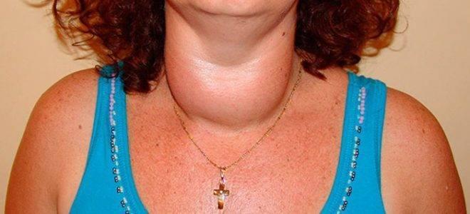 аденоматозный зоб щитовидной железы