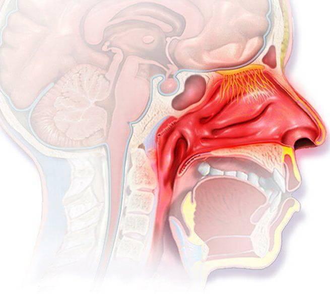 Хронический фарингит: симптомы и лечение