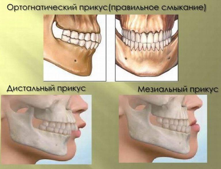правильный прикус зубов