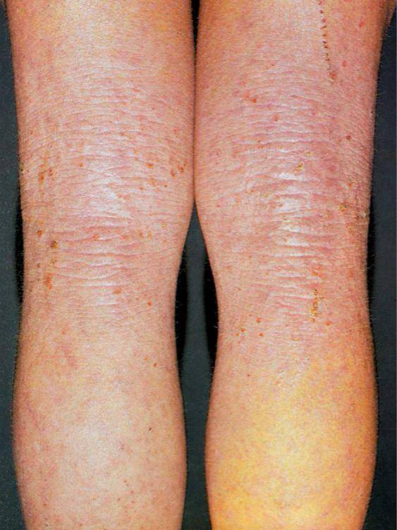 Зудящий дерматит — лечение, причины, симптомы
