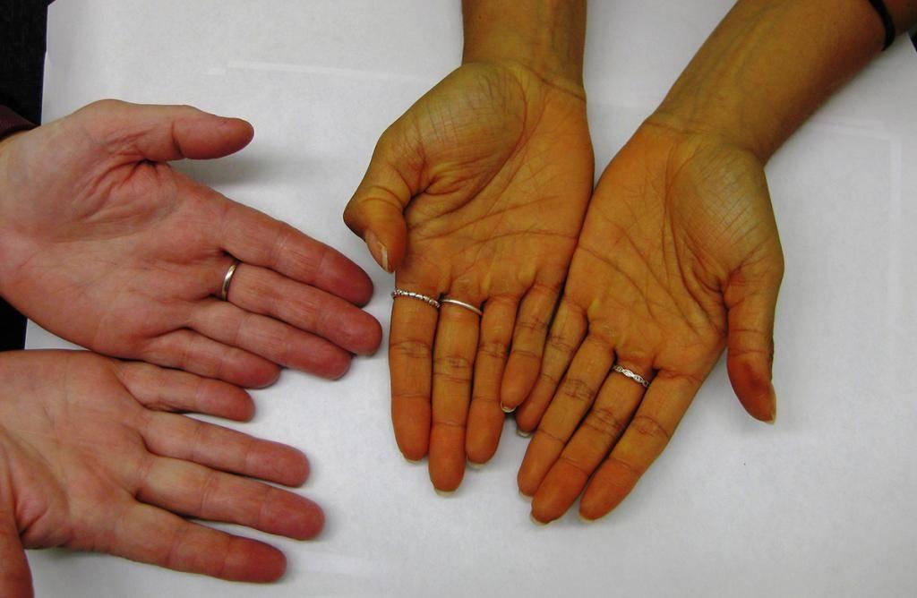 Каротиновая желтуха: как распознать и нужно ли лечить
