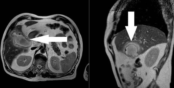 Эмпиема желчного пузыря: что это такое, симптомы и лечение