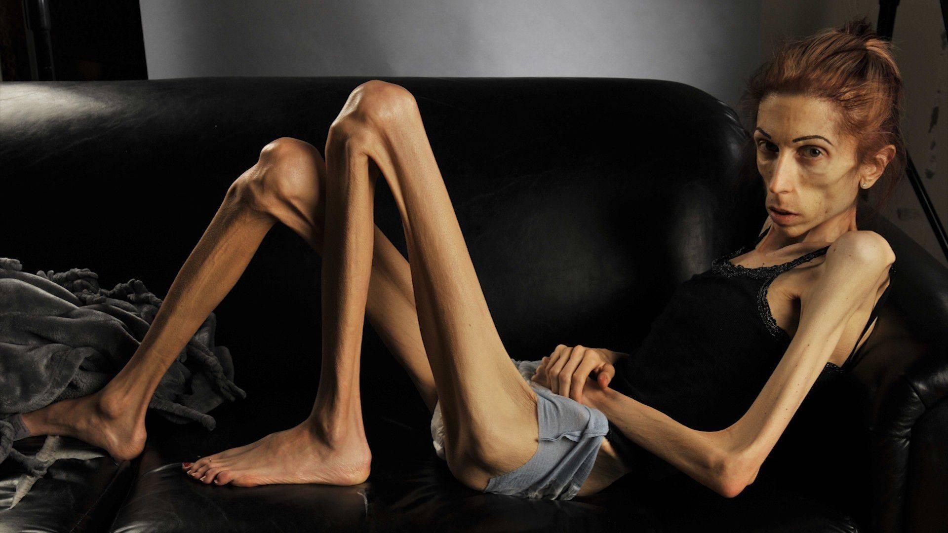 как дойти до анорексии