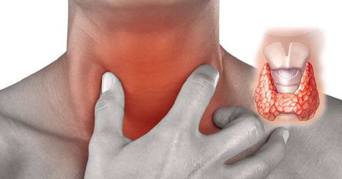 Щитовидная железа, ком в горле: причины и симптомы | pro shchitovidku