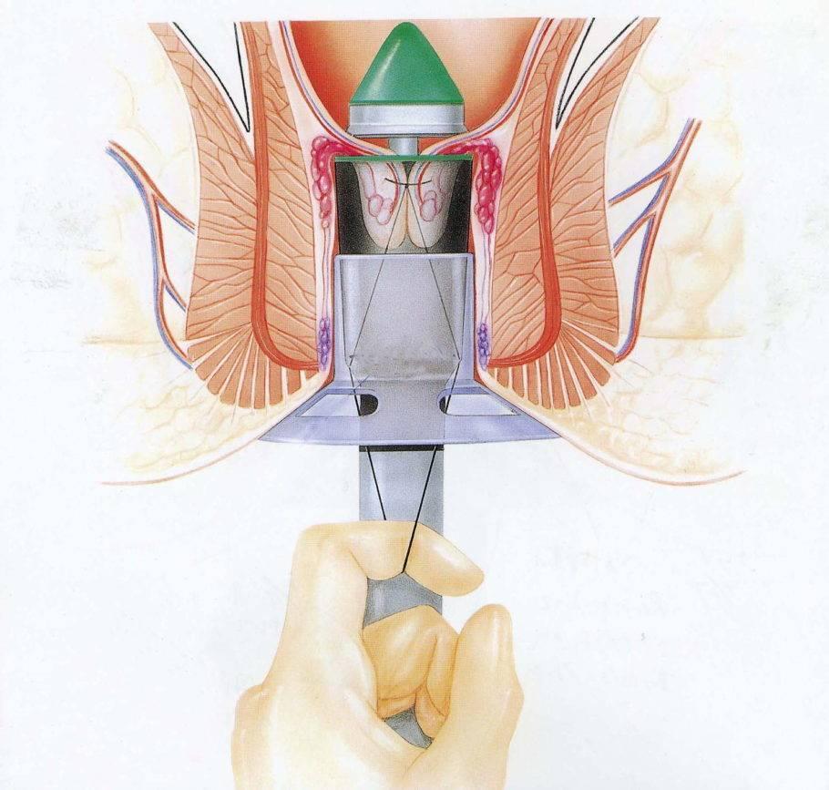Воспаление геморроидального узла: причины появления и лечение