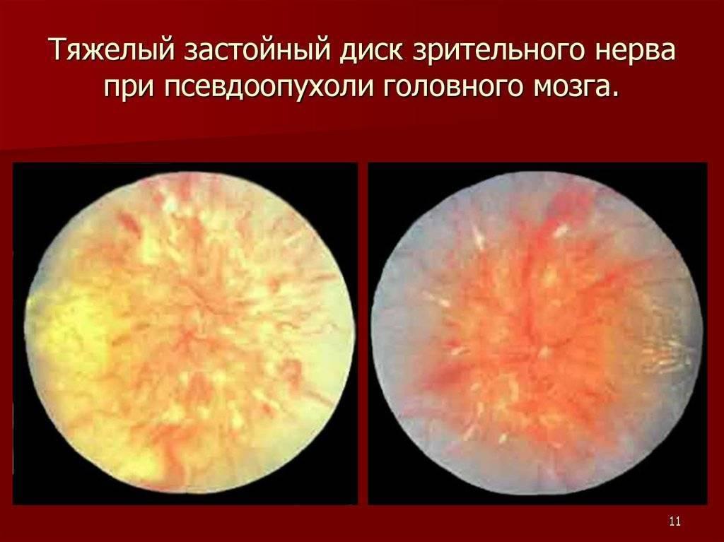 Изменения органа зрения при заболеваниях центральной нервной системы | часть 1.