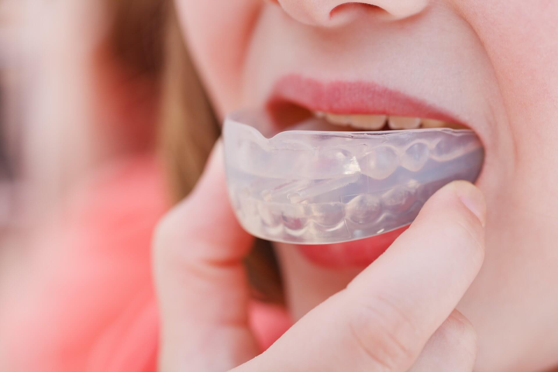 Детские и взрослые трейнеры для зубов: разновидности, показания, правила ношения, стоимость