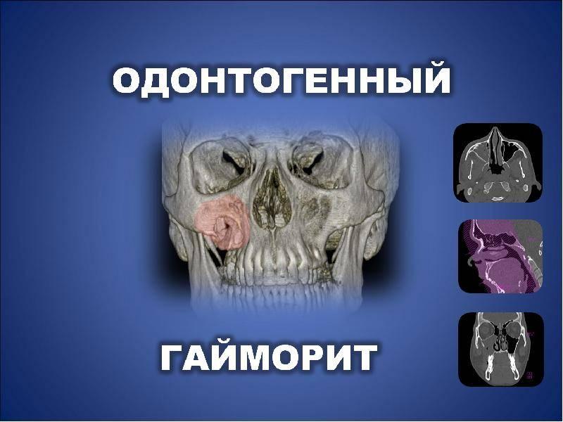 хронический одонтогенный гайморит
