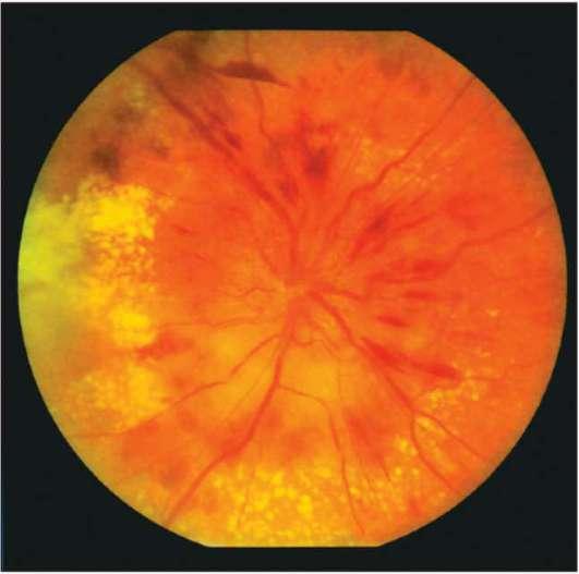 отек глазного нерва