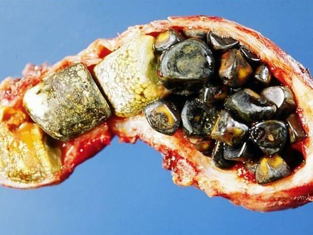Камни в желчном пузыре - лечение жкб народными средствами