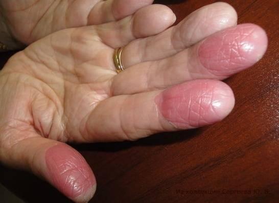Как вылечить дерматит на половых органах