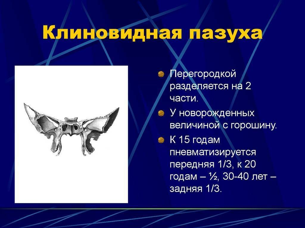 Сфеноидит. причины, симптомы, признаки, диагностика и лечение патологии :: polismed.com