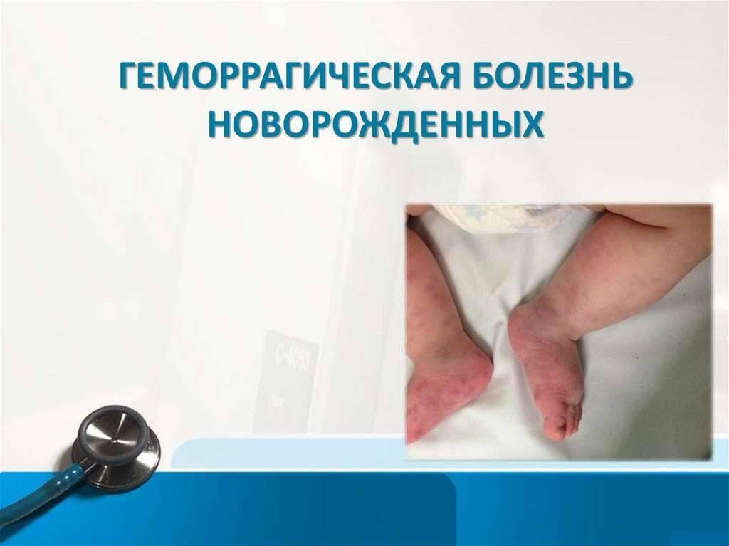 Геморрагическая болезнь новорожденных - симптомы болезни, профилактика и лечение геморргической болезни новорожденных, причины заболевания и его диагностика на eurolab