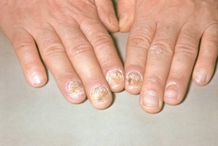 Псориаз ногтей - лечение