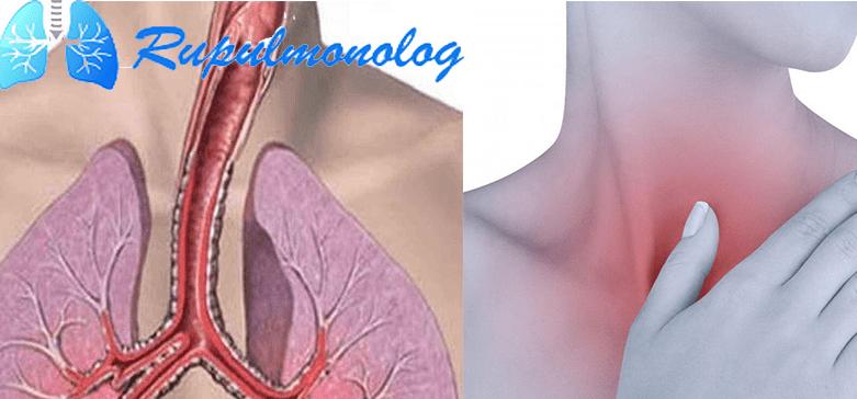 сколько длится кашель при трахеите