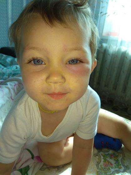 у ребенка заплыл глаз от укуса мошки