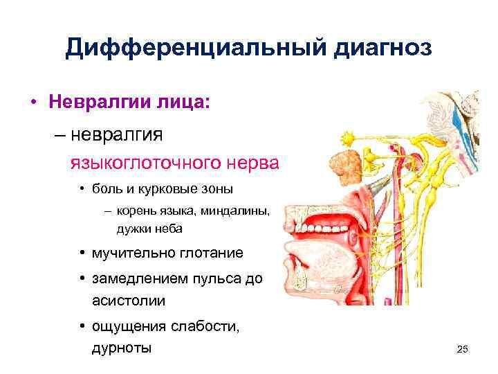 «ком в горле»: симптомы и лечение невроза глотки или фарингоневроза