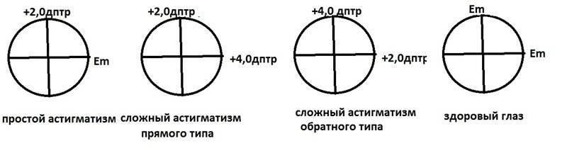 Сложный астигматизм: методы коррекции и лечения разных видов