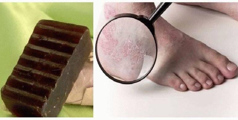 Маска с дегтем от псориаза: как делать? лечение мылом из березового дегтя: способы применения